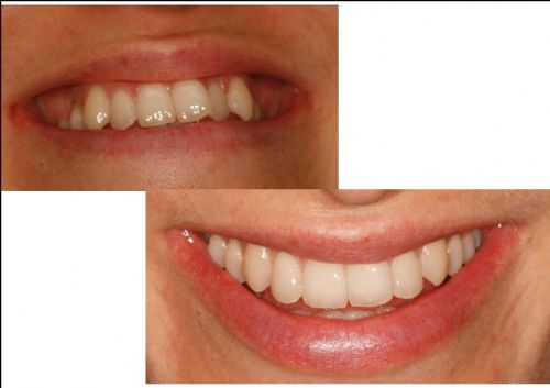 An example of our orthodontic work