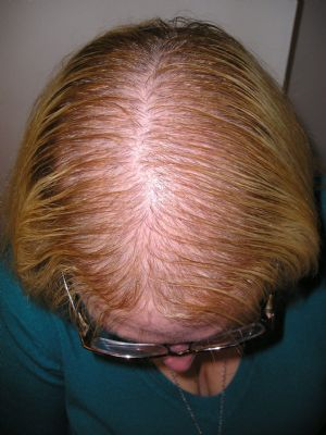Anne - female patten hair loss