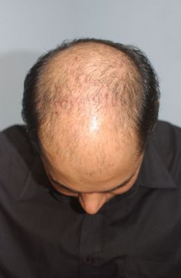 Male patten baldness