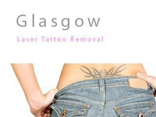 logo Glasgow Tattoo Removal