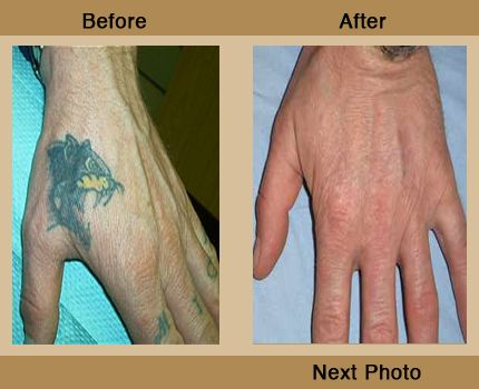 The q factor laser clinic uk tattoo removal company in for Tattoo removal service