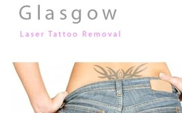 Glasgow tattoo removal tattoo removal company in glasgow for Tattoo laser removal near me