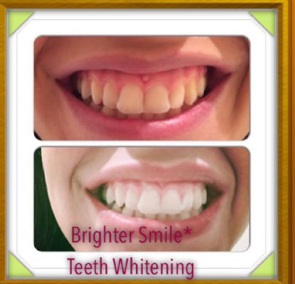 how to get brighter teeth