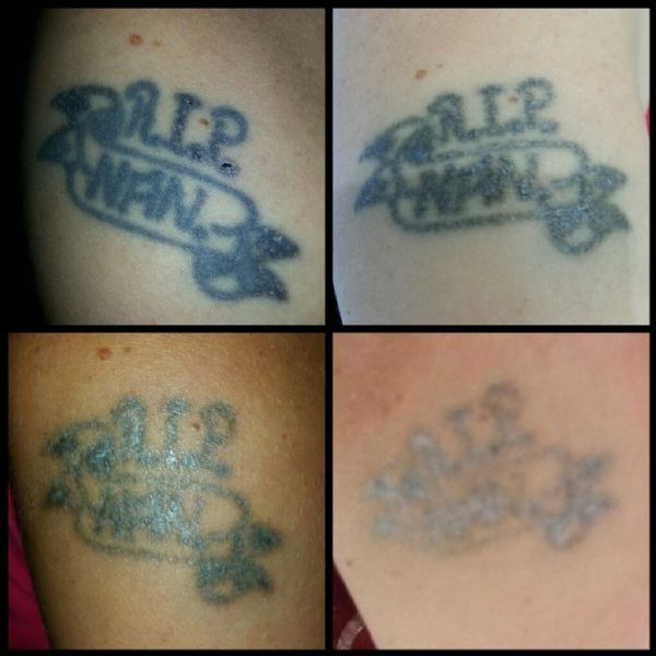 Laser Lady Mold Tattoo Removal Company Freeindex