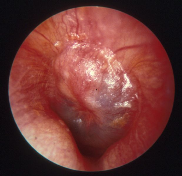 Really. was Otitis media in adults treatment