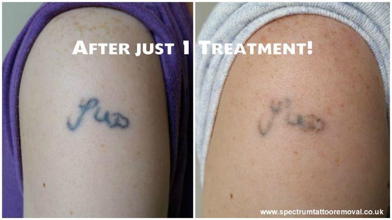 Spectrum Tattoo Removal