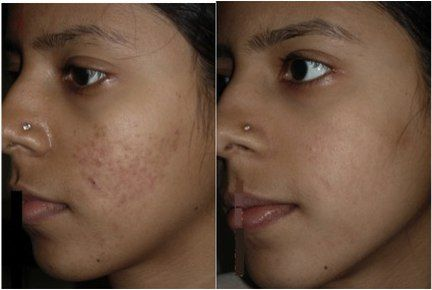 The New York Laser Clinic + MediSpa 2fdd659d08d